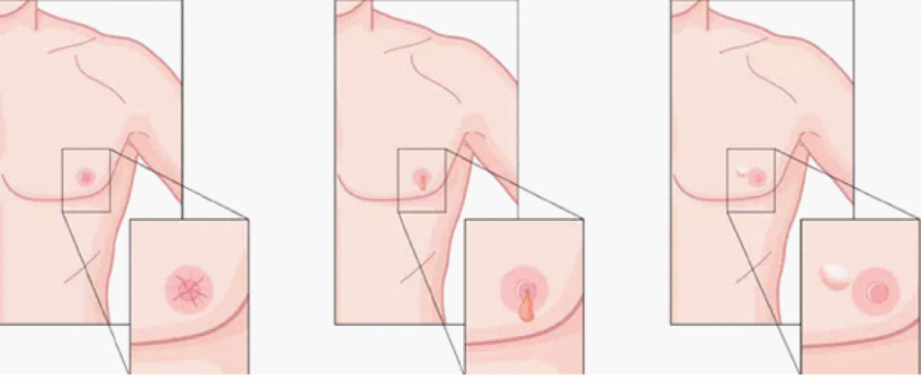 Are you at the risk of Breast Cancer? Read this & find out.